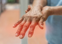 Peripheral Neuropathy pain in elderly senipatient on hand, palm, finger and sensory nerves with numb, aching, muscle weakness, stabbing, burning from chronic inflammatory demyelinating polyneuropathy