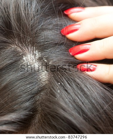 Persistent dandruff issue - flaky scalp