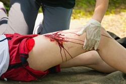 Person with serious leg injury, receiving first aid treatment. Medical exercise, artificial blood
