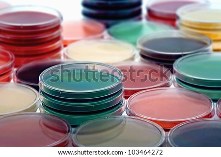 petri dishes with culture medium/selection of different media plates
