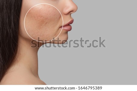 Photo before and after treatment for acne. A young girl with a problem skin. Skin treatments. Cosmetology and professional skin care.