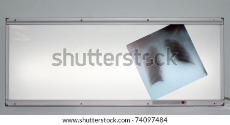 photo chest radiographs located on negatoscope