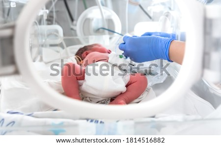 Photo of a premature baby in incubator. Focus is on his feet. Nurse in blue gloves is using the feeding tube for feeding premature baby. Neonatal intensive care unit Stock photo ©