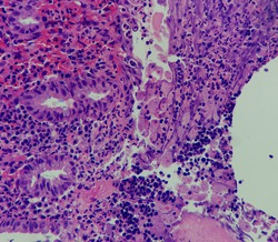 Photo of amebic colitis, focus on ameba along mucosal surface, magnification 400x, photo under microscope