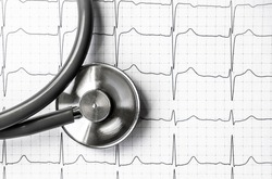 Photo of an electrocardiogram ECG or EKG printout with stethoscope. Medical health concept. Auscultation, listening to the heart pulse with a stethoscope