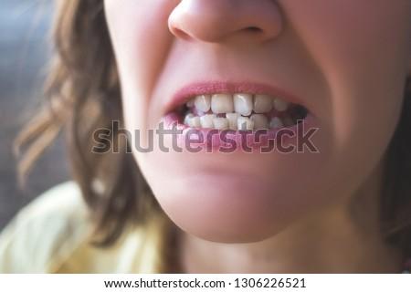 Photo of crooked woman teeth Stockfoto ©