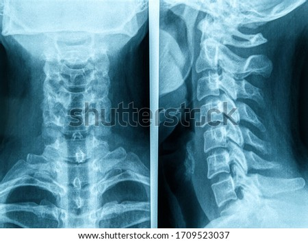 Photo of human neck X-ray image Foto stock ©