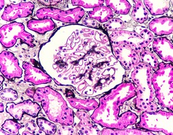 Photo of membranous nephropathy. This glomerulus reveals subepithelial deposit, photo under microscope, silver stain, magnification 400x