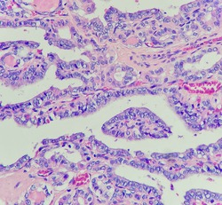 Photo of papillary thyroid carcinoma, showing intranuclear pseudoinclusion, magnification 400x, photo under microscope