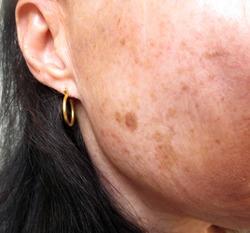 Photo of pigmentation spots on face