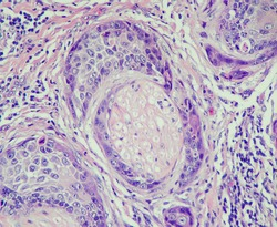 Photo of squamous cell carcinoma showing perineural invasion, magnification 400x, photo under microscope