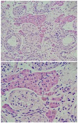 Photo of testicular atrophy, magnification 200x in the upper and 400x in the lower, photo under microscope