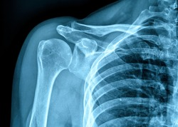 Photo of X-ray film of human shoulder