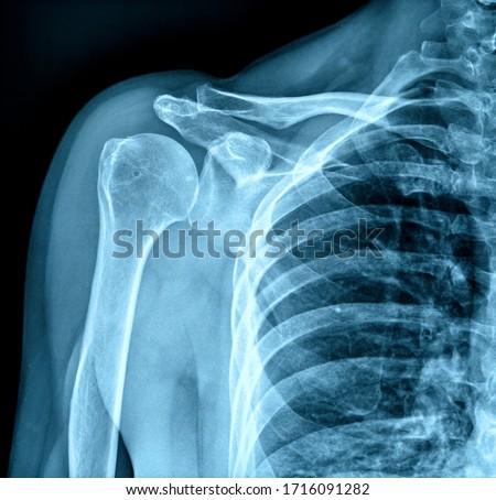 Photo of x-ray human shoulder Foto stock ©