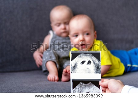 Photo ultrasound twins. In the background are twins, a boy and a girl of 7 months. Maternity