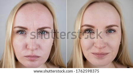 Photos before and after mesotherapy, biorevitalization, botulinum toxin injections. Skin fold between eyebrows, forehead wrinkles. At the appointment with a plastic surgeon or cosmetologist Stock photo ©