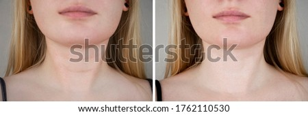Photos before and after plastic surgery to remove Venus rings. Contour plastics of the neck, mesotherapy or botulinum therapy. Wrinkles and creases in the neck Photo stock ©