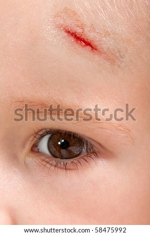 Physical injury blood wound skin human child pain
