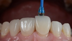 Placing porcelain laminated veneer onto the teeth result in perfect well-aligned teeth.
