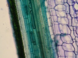 Plant stem, long section under microscope view