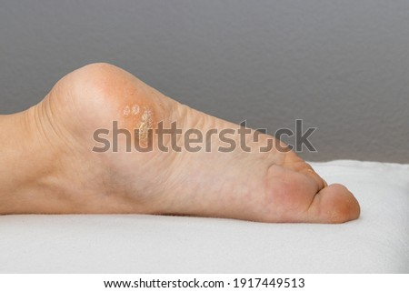 Plantar wart close up on the bottom of a female foot heel caused by the human papillomavirus, or HPV. Zdjęcia stock ©