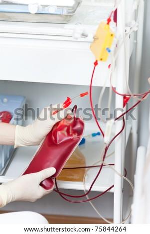 Plasmapheresis. Procedure Of Cleaning Of Blood Stock Photo ...