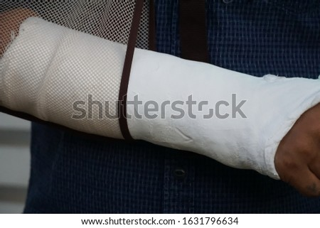 Plaster cast is put around broken arm and supported with arm sling for immobilize, selective focused.