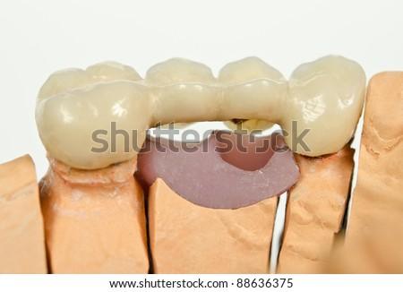 plaster model, dental bridge, gap