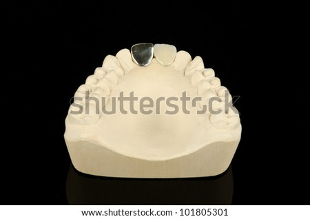 plaster model with differing types of traditional crowns