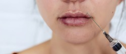 Plastic lips. Women's lips after injections of hyaluronic acid. Complications after lip augmentation, close-up scars and bruises.