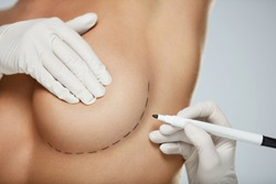 Plastic Surgery. Closeup Of Naked Sexy Woman Body With Black Surgical Marks On Her Breast. Closeup Of Doctor Hands Drawing Lines On Female Breast Before Breast Augmentation Operation. High Resolution