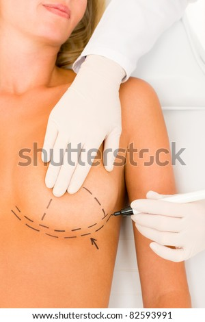 Plastic surgery doctor draw line on patient breast augmentation implant