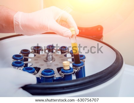 Platelet-Rich plasma preparation. Tube with blood in hands. Centrifuge. Background #630756707