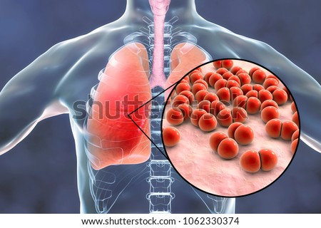 Pneumococcal pneumonia, medical concept. 3D illustration showing bacteria Streptococcus pneumoniae in human lungs