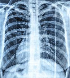 Pneumonia virus lung bones radiograph snapshot blue colored
