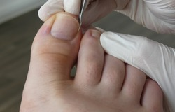 Podiatry, Chiropodist, medical foot care, podiatrist, ingrown toenail, fix an ingrown toenail