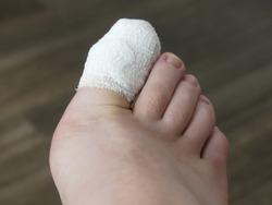 Podiatry Chiropody Foot Medical Stubbed Toe Ingrown Toenail