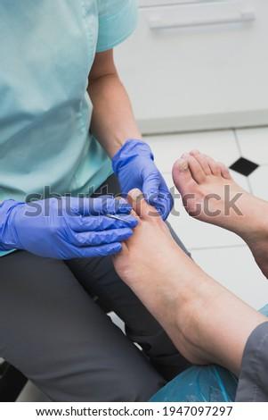 Podology treatment. Podiatrist remove calluses, corns and treats ingrown nail. Hardware pedicure. Selective focus. ストックフォト ©