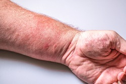Poison ivy rash displayed against a white background.