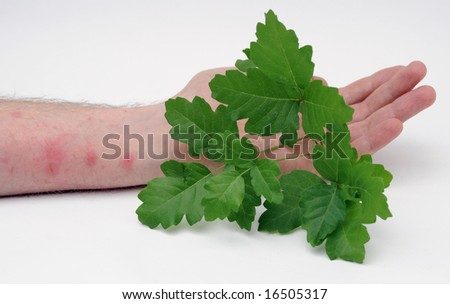 poison ivy rash treatment. poison ivy rash treatment.