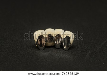 porcelain fused to metal bridge of lower anterior teeth from back view on black background