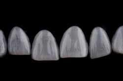 Porcelain laminated veneers with black background, ultra thin dental veneers.