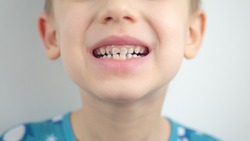 Portrait of a boy in pajamas, bad teeth, closeup.