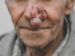 portrait of a man with cancer-basal cell carcinoma