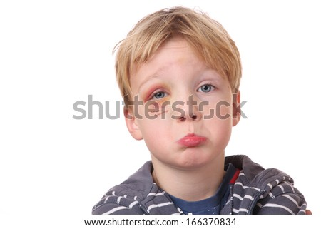 Portrait of a young boy with black eye on white background