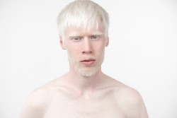 portrait of an albino man in  studio dressed t-shirt isolated on a white background. abnormal deviations. unusual appearance. skin abnormality