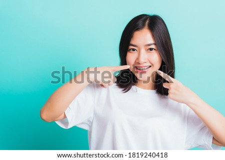 Portrait of Asian teen beautiful young woman smile have dental braces on teeth laughing point finger her mouth, studio shot isolated on a blue background, Medicine and dentistry concept Stockfoto ©