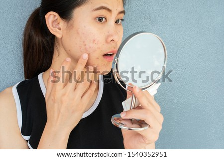 Portrait of Asian woman worry about her face when she saw the problem of acne inflammation and scar by the mini mirror. Conceptual shot of Acne & Problem Skin on female face.
