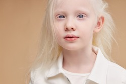 portrait of awesome albino kid with blonde hair. Fashion style and beauty look. Child with unusual young tender white skin. albinism, children, people diversity concept