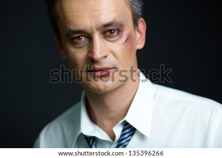 Portrait of businessman with bruise looking at camera - stock photo
